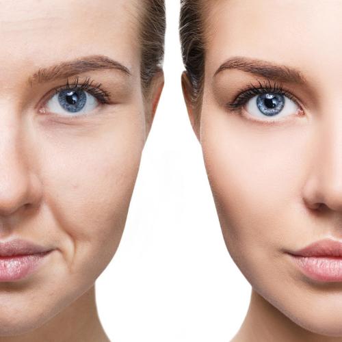 Meso Beauty Therapy & Xo cell Plasma